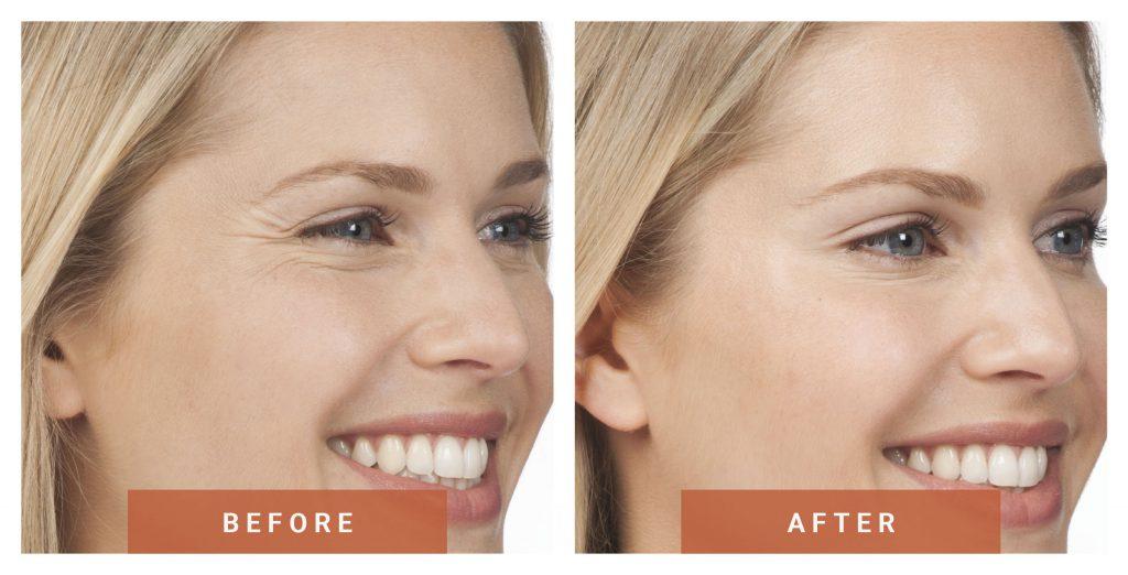 Botox e muscolatura facciale